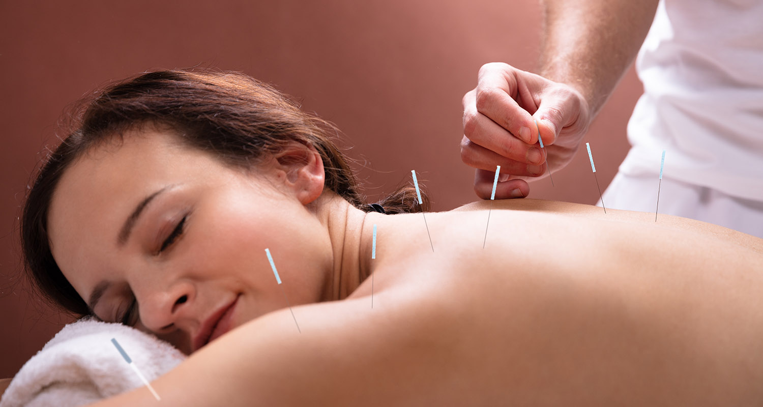Woman enjoying a Acupuncture Treatment
